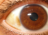 Examples of eyes that can benefit from I-BRITE™ Eye Whitening