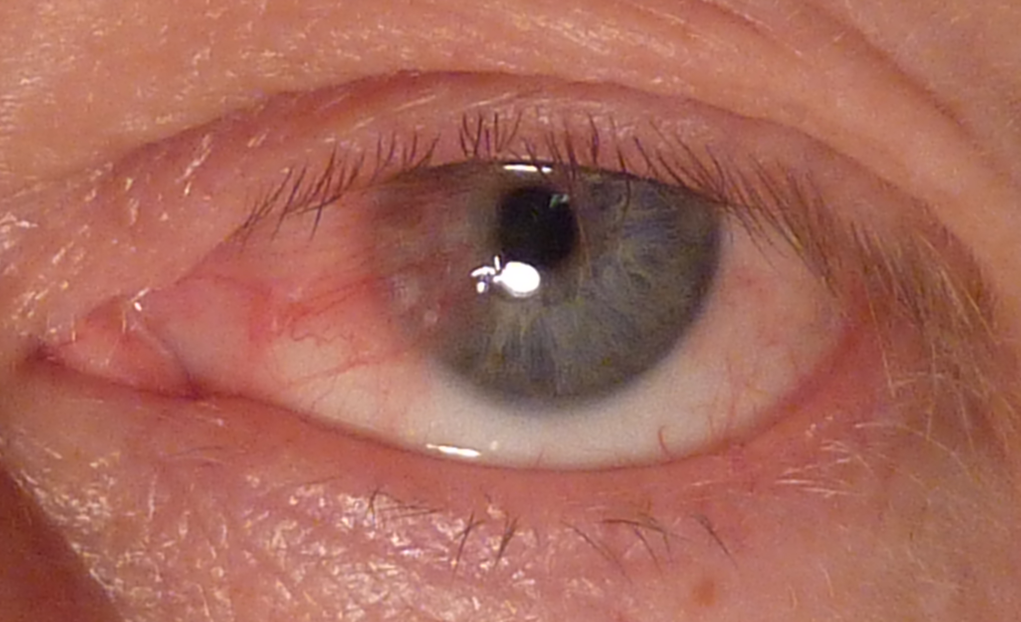 Before Pterygium Removal