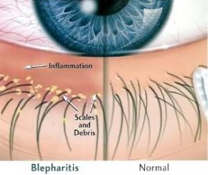 Seb-Blepharitis