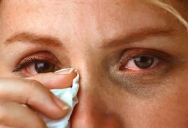 dry-eye-symptoms