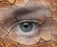 cracked dry eye