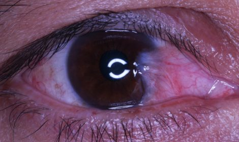 Pterygium Removal with WhiterEyes®