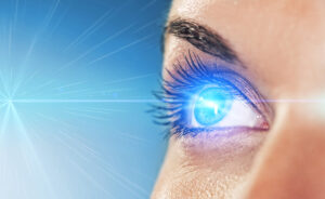 Fortified LASIK in Los Angeles
