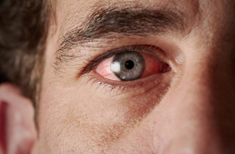 Eye discoloration treatment in Beverly Hills